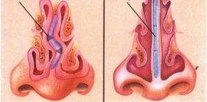 Correzione chirurgica del setto nasale deviato